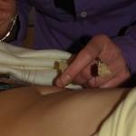 Akupunktur, Heilpraktikerin Kuch in Zittau